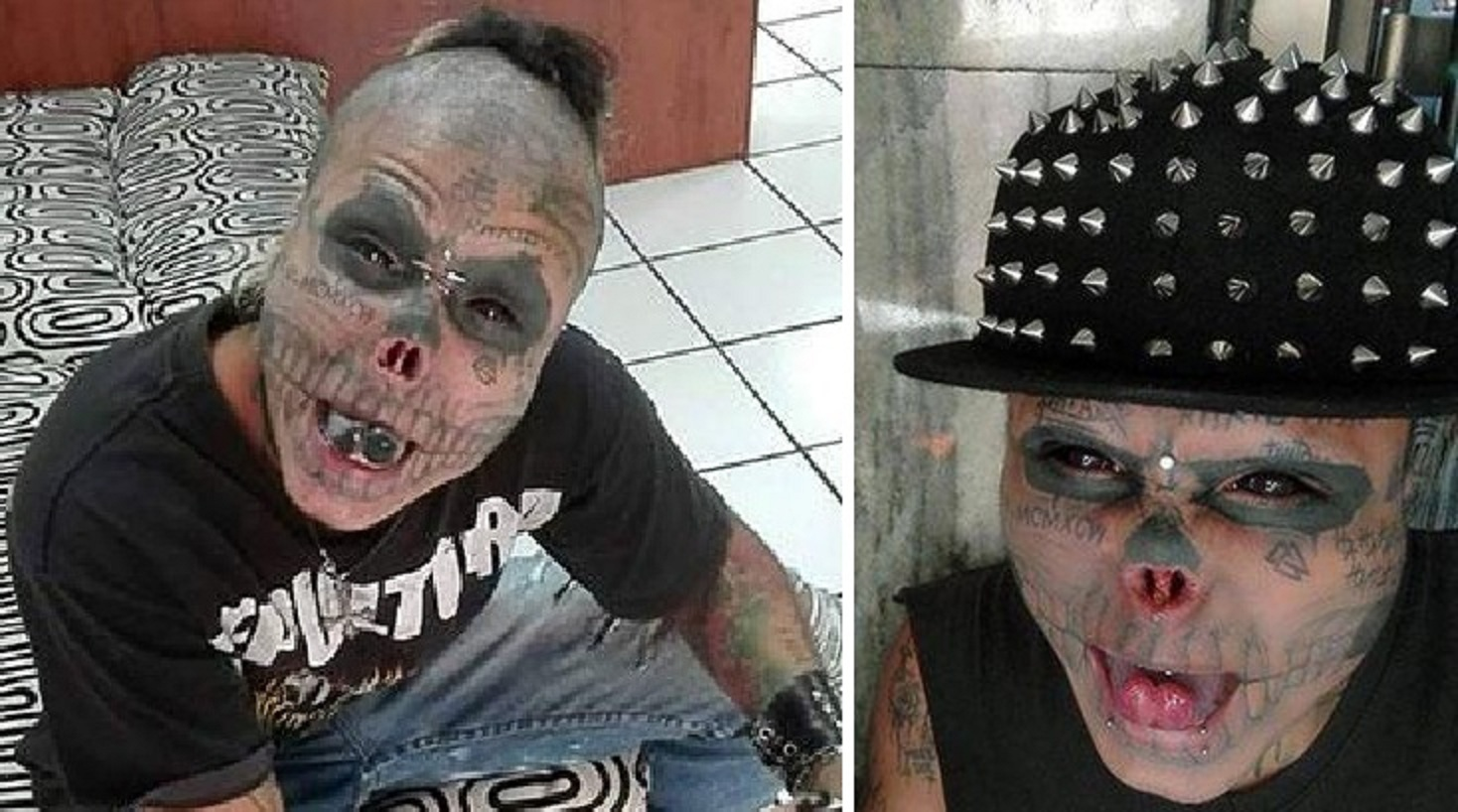 22 Year Old Man gets his Nose Cut-Off to Look Like a Skull